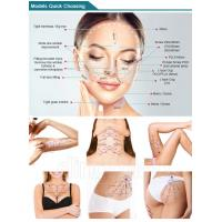 Most competitive miracu face lifting thread pdo for face finelines