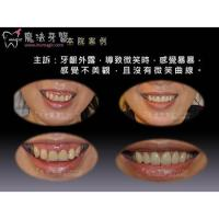 Cheap Full Mouth Dental Implants for sale
